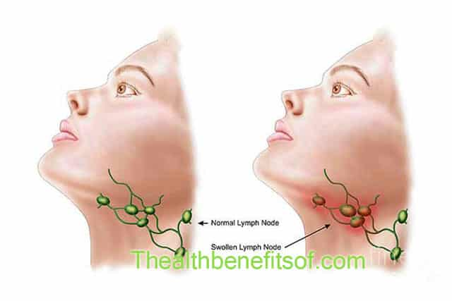home remedies for treating swollen lymph nodes - the health, Skeleton