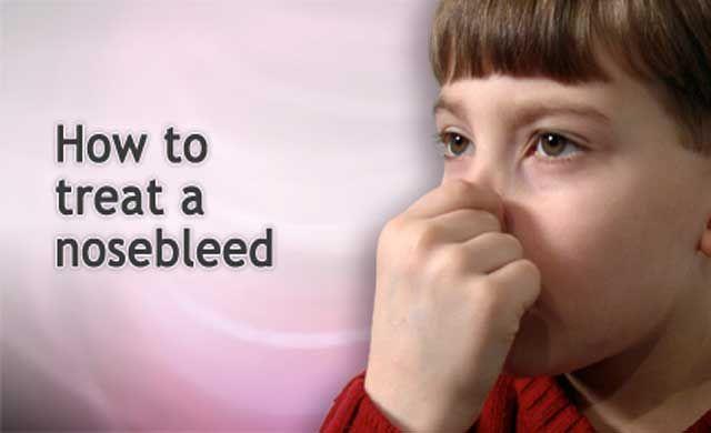 how-to-cope-nosebleeds-in-children