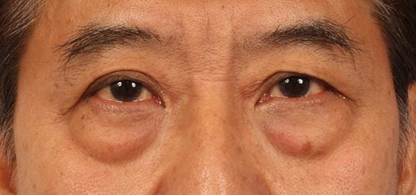 natural way to eliminate eye bags