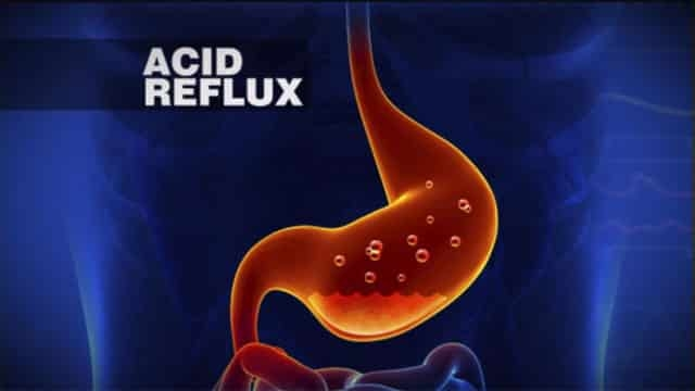 Home Remedies for Acid Reflux Treatment