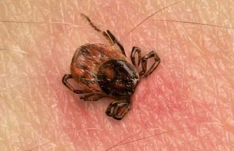 best ways for preventing tick-borne diseases
