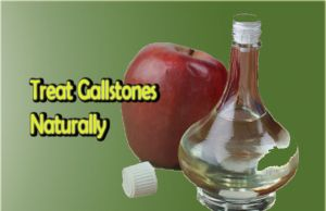 how to treat gallstones naturally