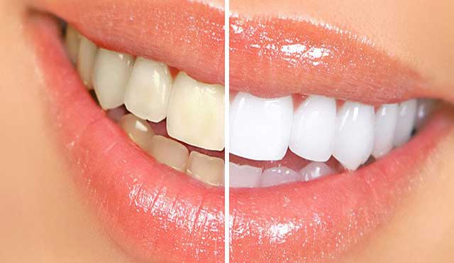 home remedies to whitening your teeth