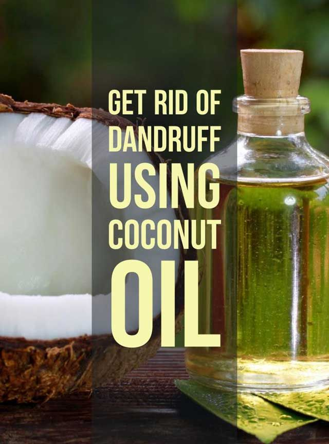 coconut oil for dandruff