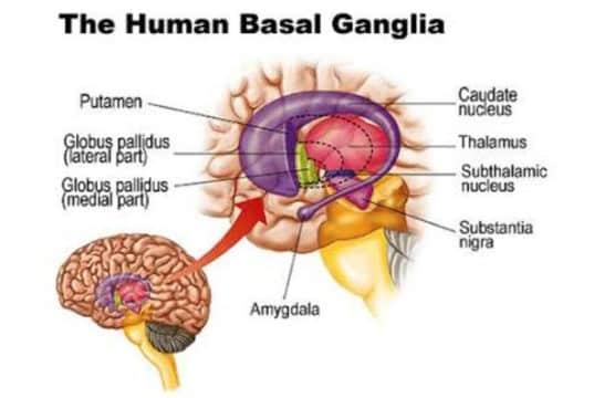 Basal Ganglia Stroke