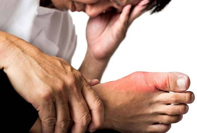 foods to avoid for increased uric acid high uric acid levels in blood causes gout itchy ankle