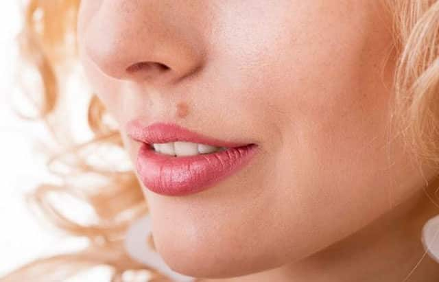 How to Get Rid of Moles on Face