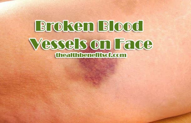 Broken Blood Vessels on Face