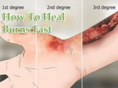 How To Heal Burns Fast, Home Remedies That Work