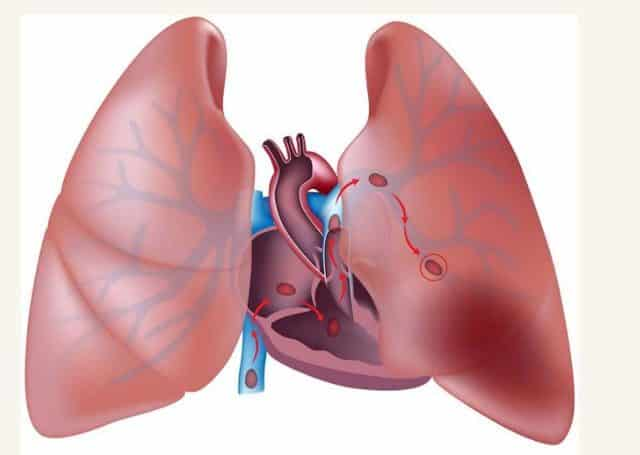How To Avoid a Pulmonary Embolism